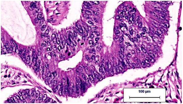 gaubtines zarnos adenokarcinoma