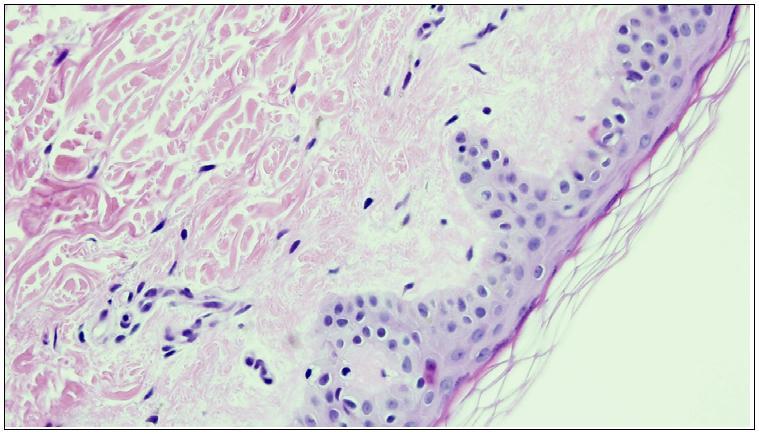 Normalios odos ląstelės